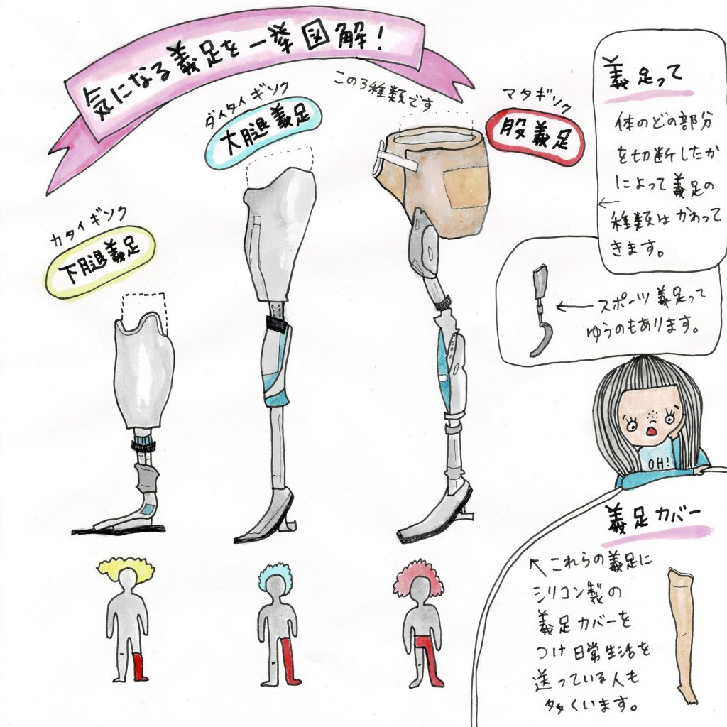An illustration from the Universal Movement Instagram account explaining the different sorts of leg prosthetics